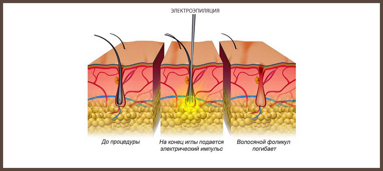 Принцип удаления волос с помощью электроэпиляции